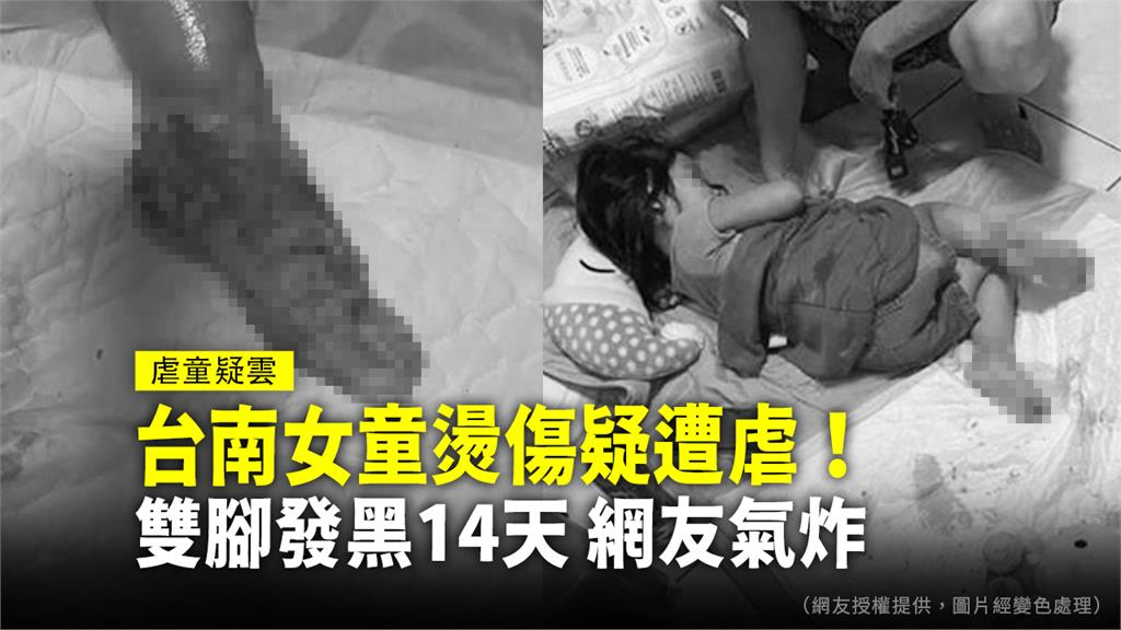 台南一名4歲女童雙腳嚴重燙傷潰爛,疑似遭虐。圖:台視新聞