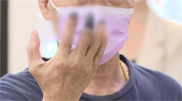 7旬確診病患 血栓手指泛黑壞死險截肢