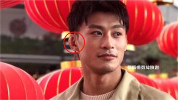 楊勇緯也有「柔道耳」 反覆訓練受傷導致囊腫、纖維...