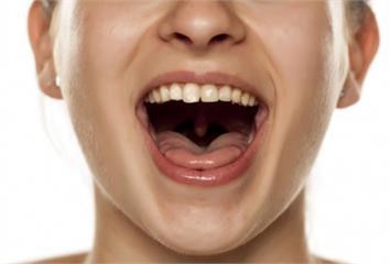 快張嘴檢查!口腔內5跡象 符合其中1項小心癌找上...