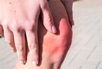 退化性膝關節炎別急著開刀,先讓醫師試一試這個方法