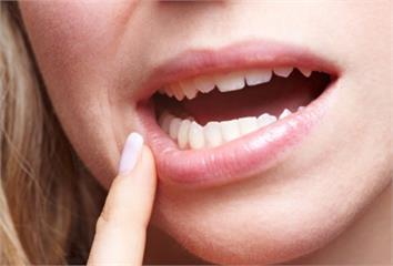 智齒不痛要拔嗎?為什麼智齒沒長出來?牙醫師揭「必...
