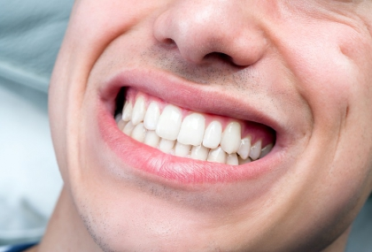植牙為什麼失會敗?  專科醫解析「影響關鍵」:磨...