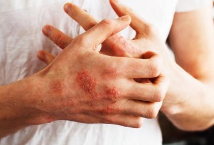 乾癬不會傳染!但會遺傳嗎?  皮膚科醫揭「罹病原...