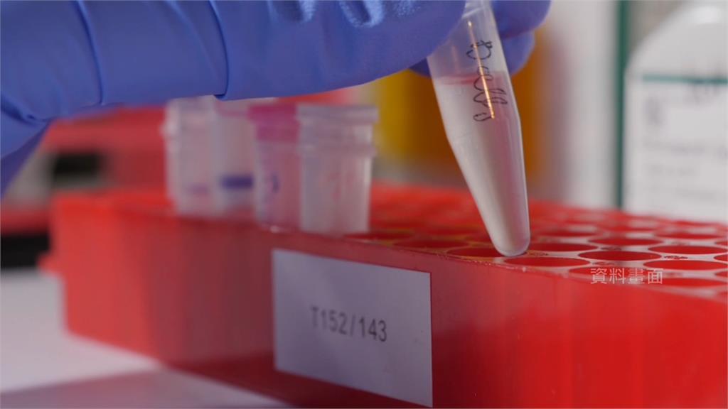 做一次血液篩檢就有可能在症狀出現前,提早驗出癌症。示意圖/翻攝自AP Direct