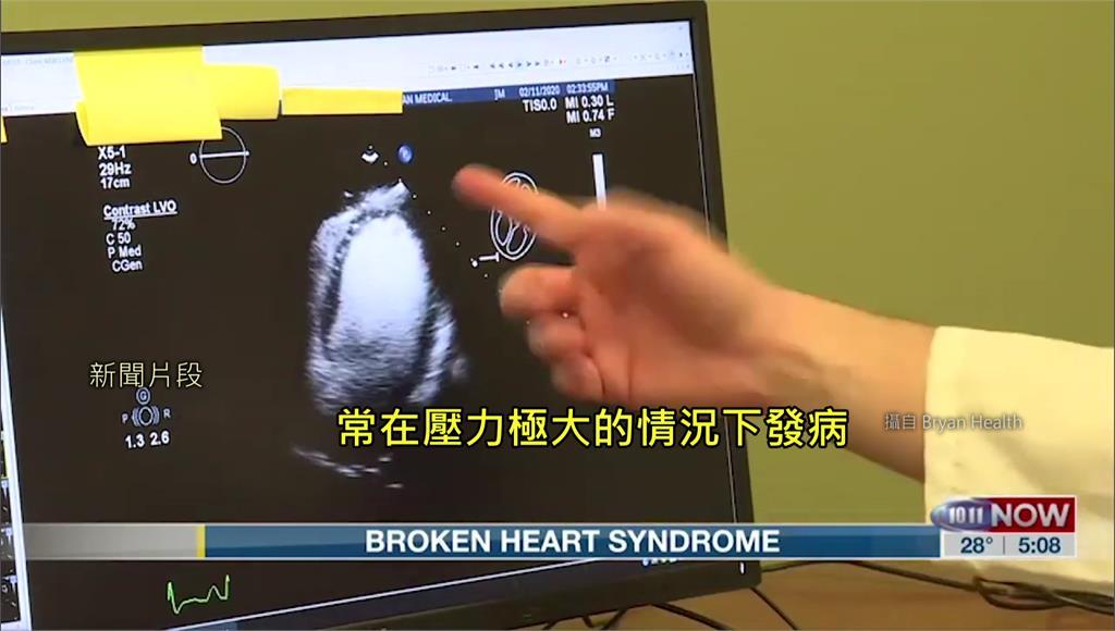 「心碎真的會要命!」 醫界研究:疫情爆發心碎患者增